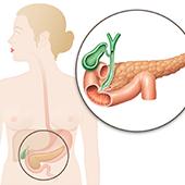 慢性膵炎の3つの病期